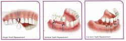 tooth implant.jpg